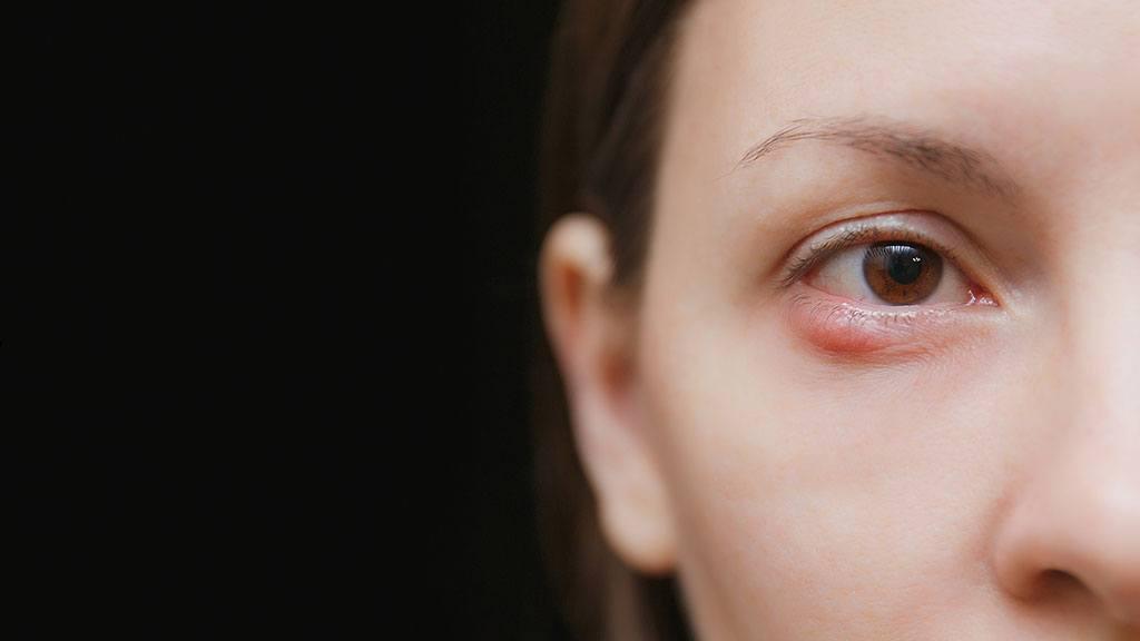 blefaritida